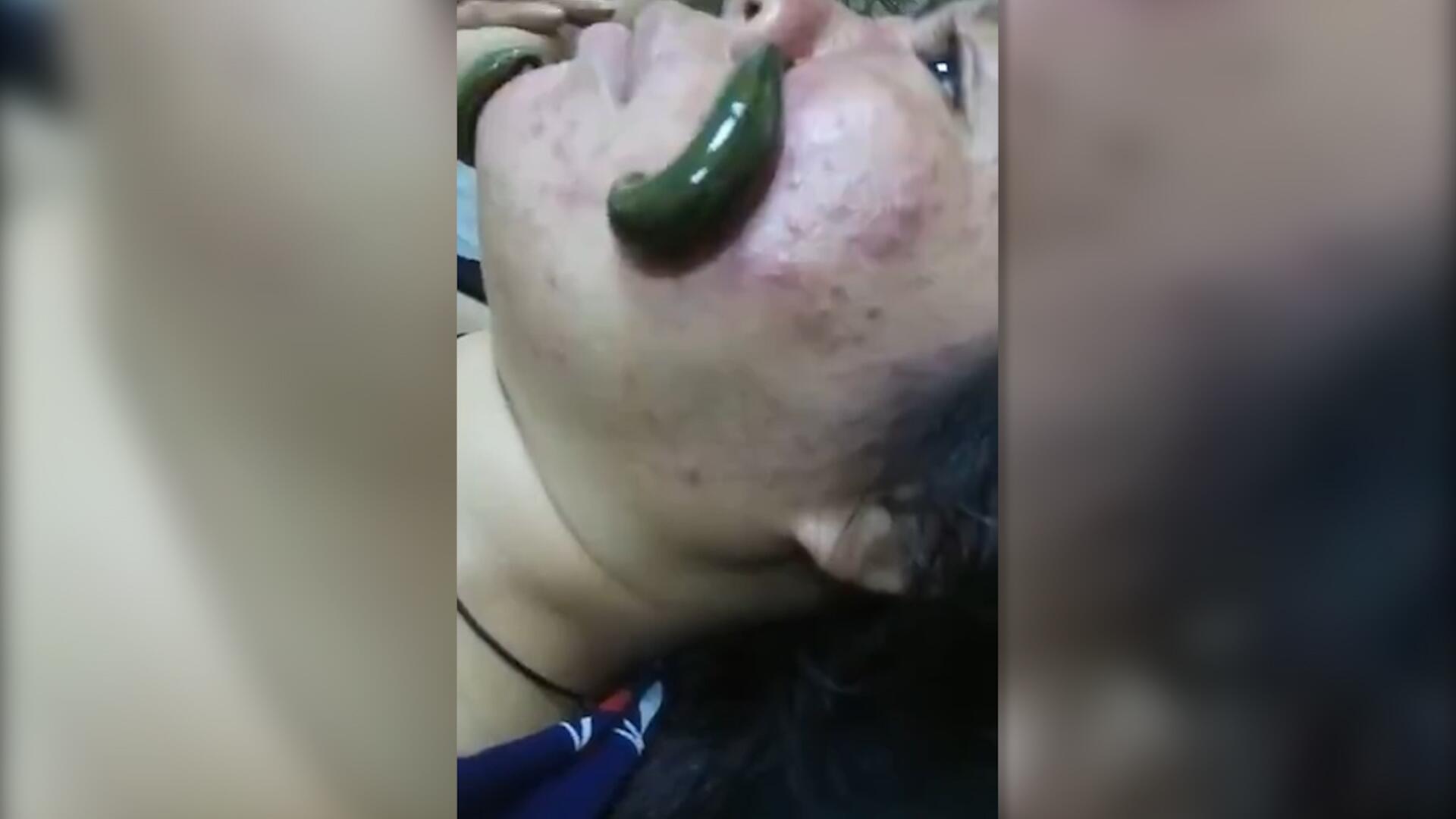Bild zu China: Frau lässt sich mit Blutegeln im Gesicht behandeln