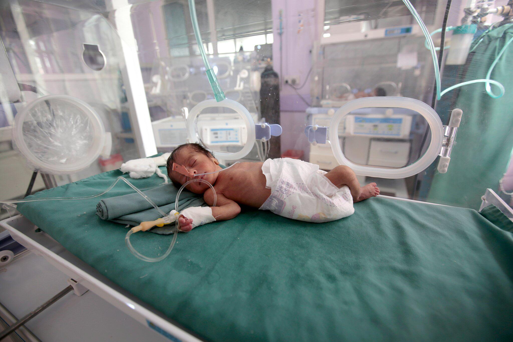 Bild zu Malnourishment in the Yemen