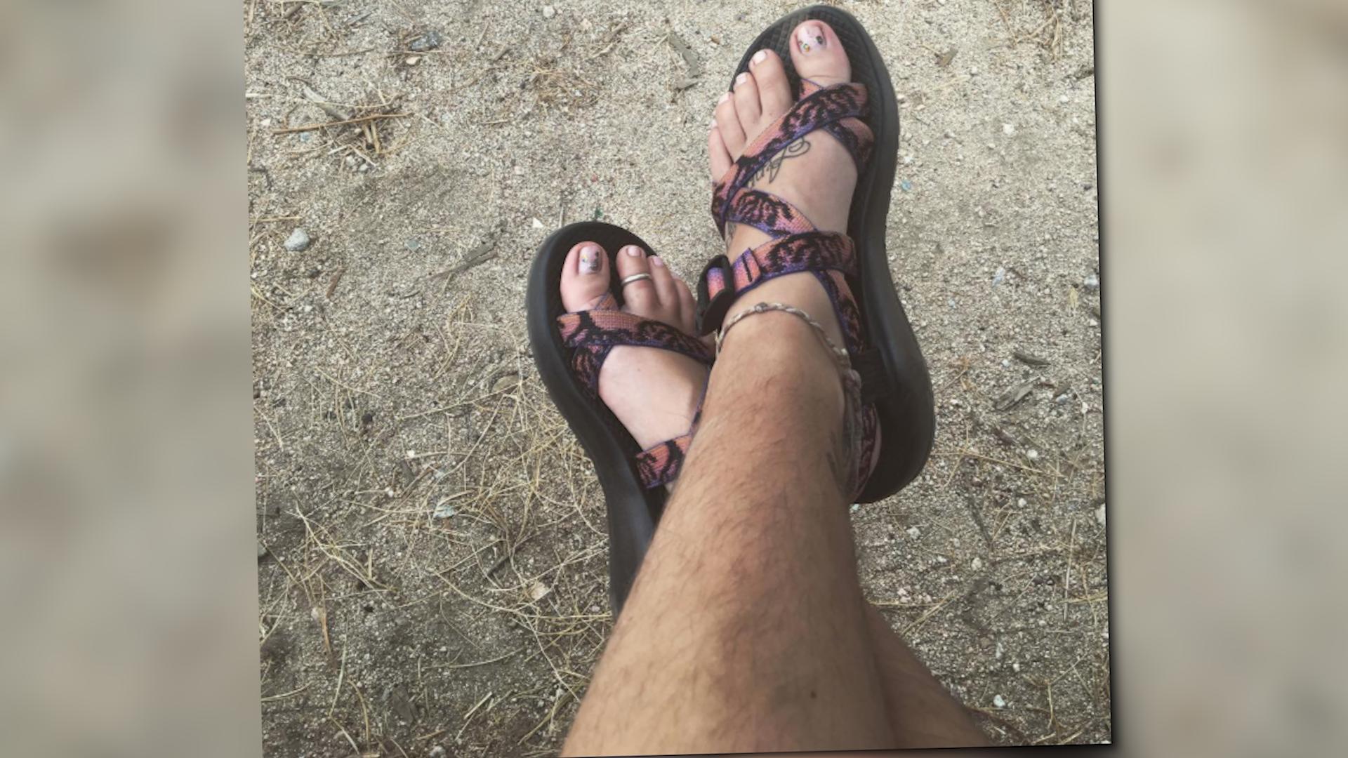 Bild zu Behaarte Beine, na und?