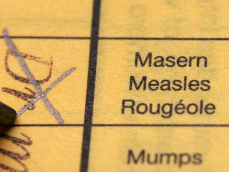 Bild zu Impfung schützt vor Masern