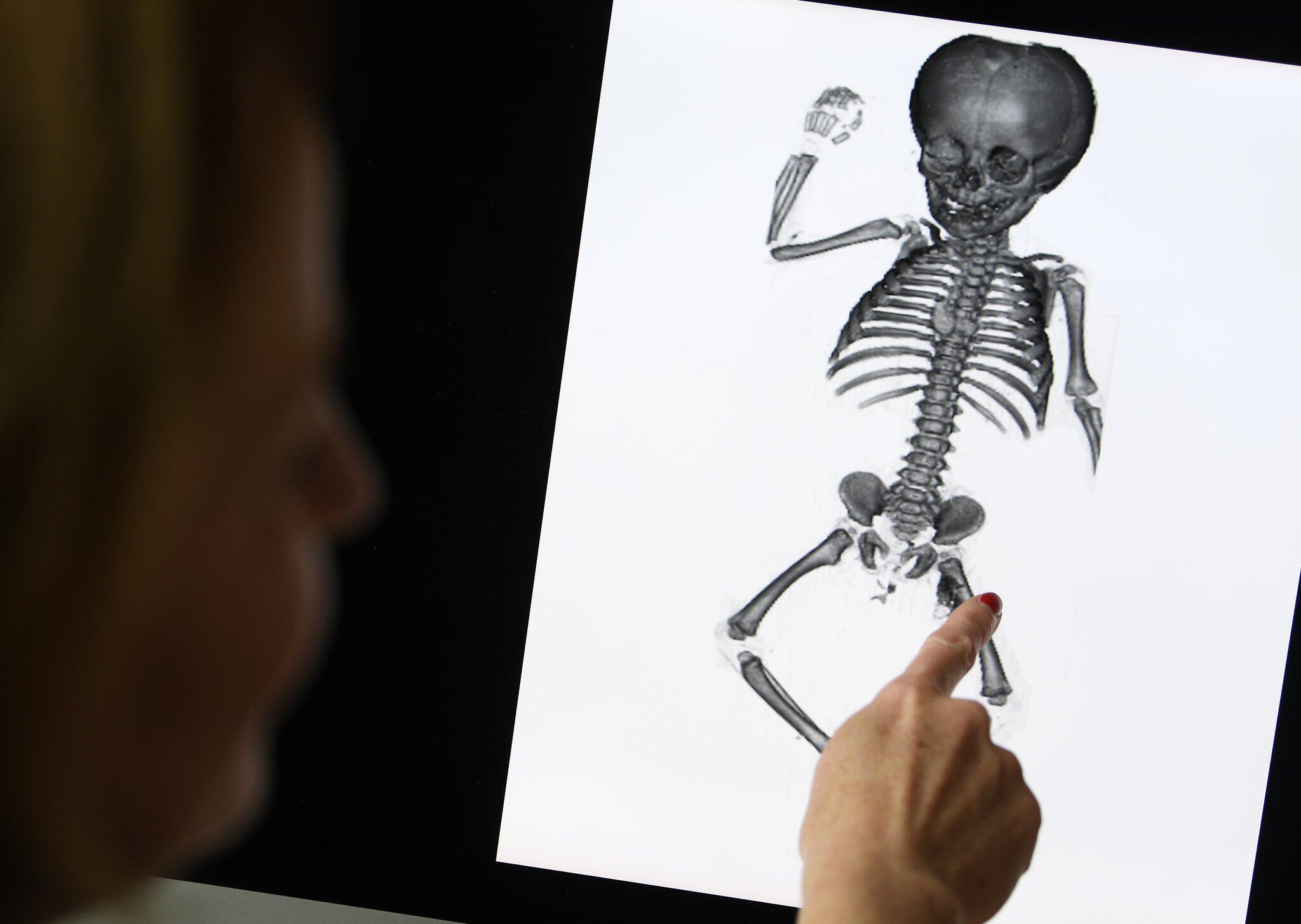 Letzte Ruhe für vergessene Kinder aus Anatomie | GMX.CH