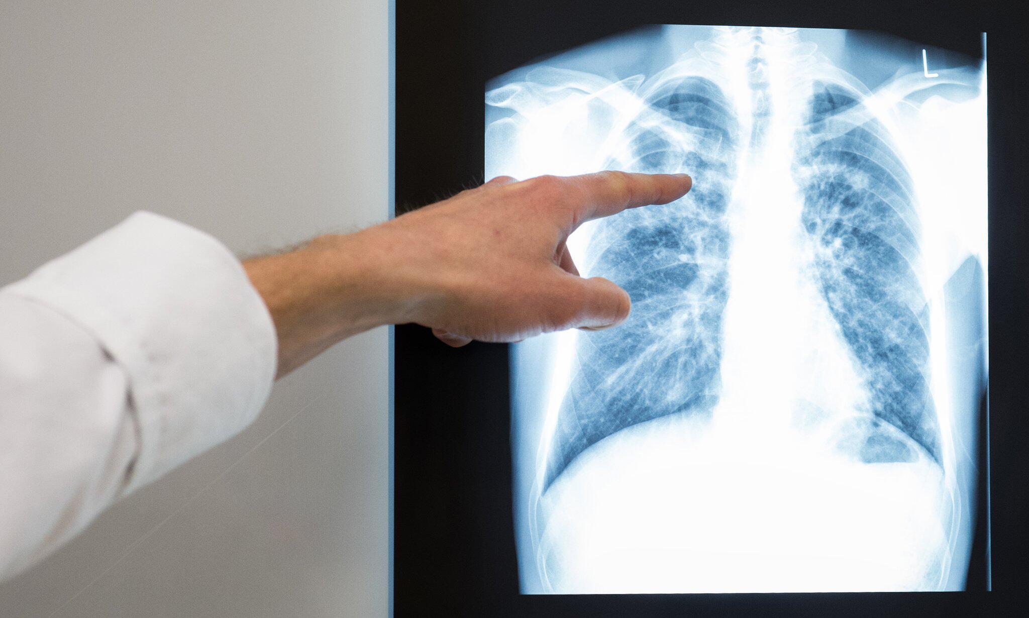 Bild zu Tuberkulose