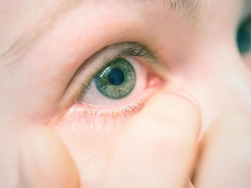 Bild zu Wenn die Augen jucken