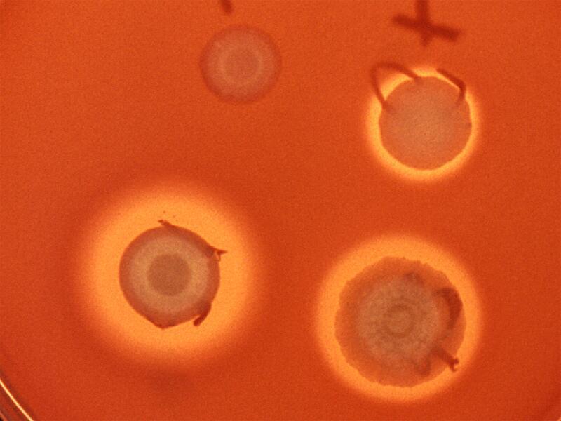 Bild zu Serratia-Bakterien